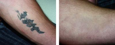 Tatuaże Strona 33 Hobby Babskiswiatnet